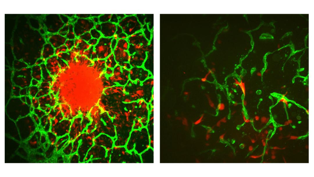 CCIL Scientist's Advances in Brain Cancer Research Leads to $3M NCI Award