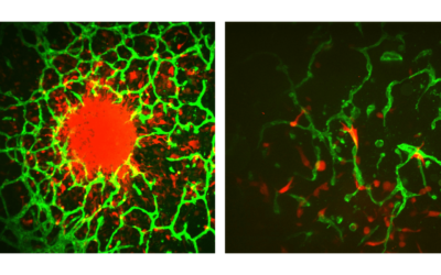 Left – Individual cells invade away from a central tumor spheroid and into the surrounding vascularized microenvironment. Tumor cells are shown in red and vasculature is shown in green. Right – Individual tumor cells (red) interact closely with surrounding vasculature (green).