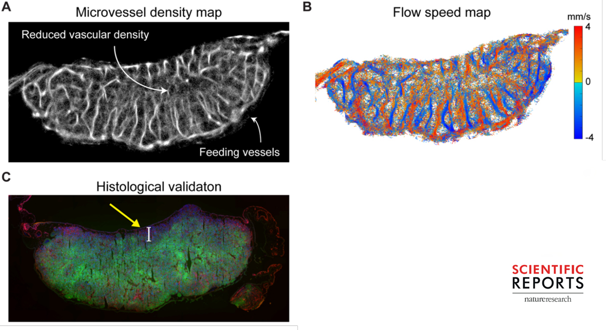 Figures illustrating super-resolution imaging of blood vessels from Pengfei Song's paper