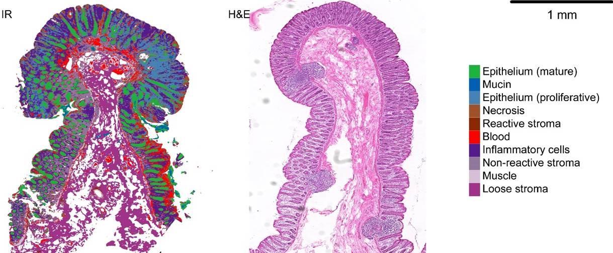 Image of pancreatic cells