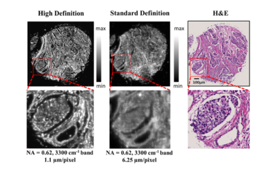 Comparisons of high definition and standard definition infrared imaging for digital histopathology